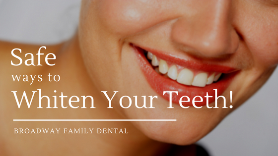 Safe Ways to whiten your teeth by broadway family dental